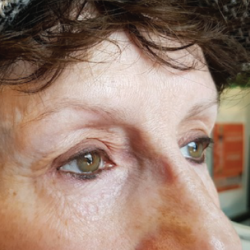 Port-Dover-Microblading-Before-2